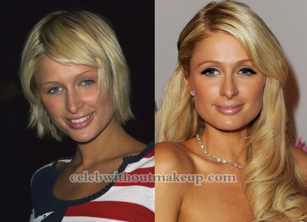 Paris Hilton Before After Makeup