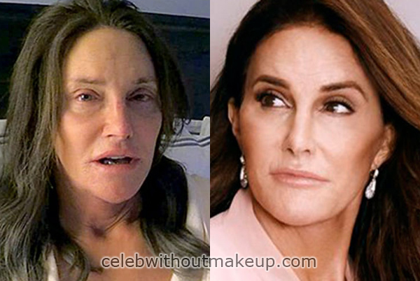 Before after pictures and bruce jenner