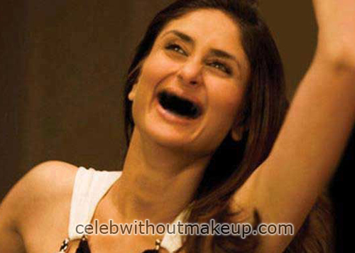 Kareena Kapoor Without Teeth