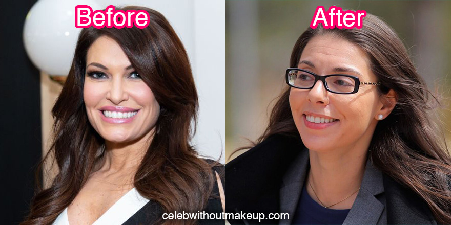 Kimberly Guilfoyle No Makeup Before and After Comparison